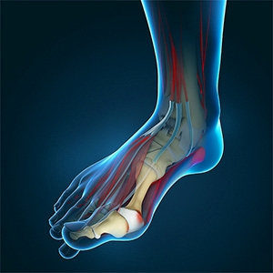 Don't ignore your bunion
